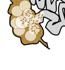 Dickdarmbakterien kommen in den Dünndarm. MIt einer Darmsanierung kann man diese wieder zurückdrängen.