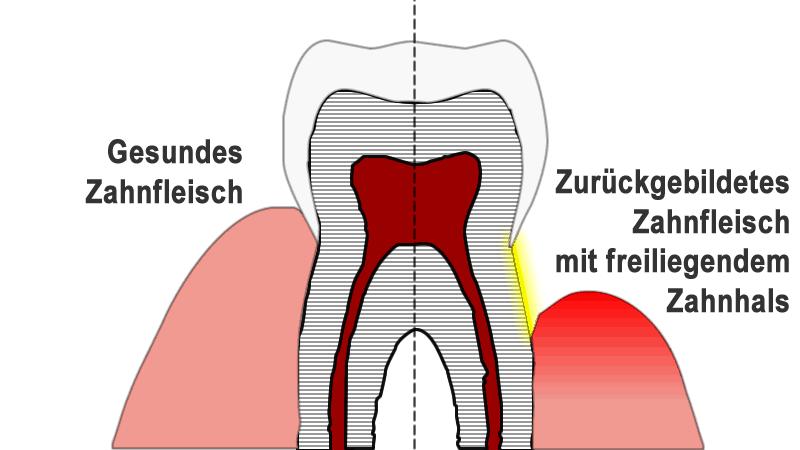 Vergleich von am Zahn eng anliegendem gesunden Zahnfleisch und entzündetem Zahnfleisch, das zu freiliegenden Zahnhälsen führt.